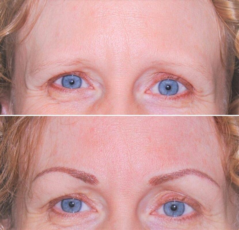 Eyebrows Microblading in Milton at Spring Mist Spa Milton