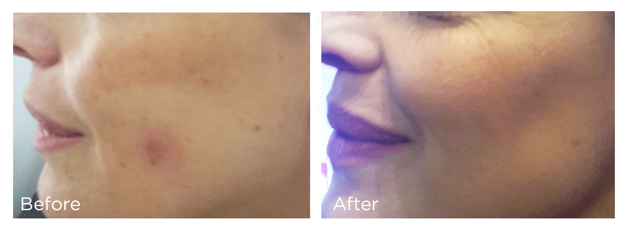 Spring Mist Spa Milton - Remove unwanted skin lesions with Cryotherapy - Erase Dark spots, Age spots, Skin tags, Warts, Moles, Milia and more