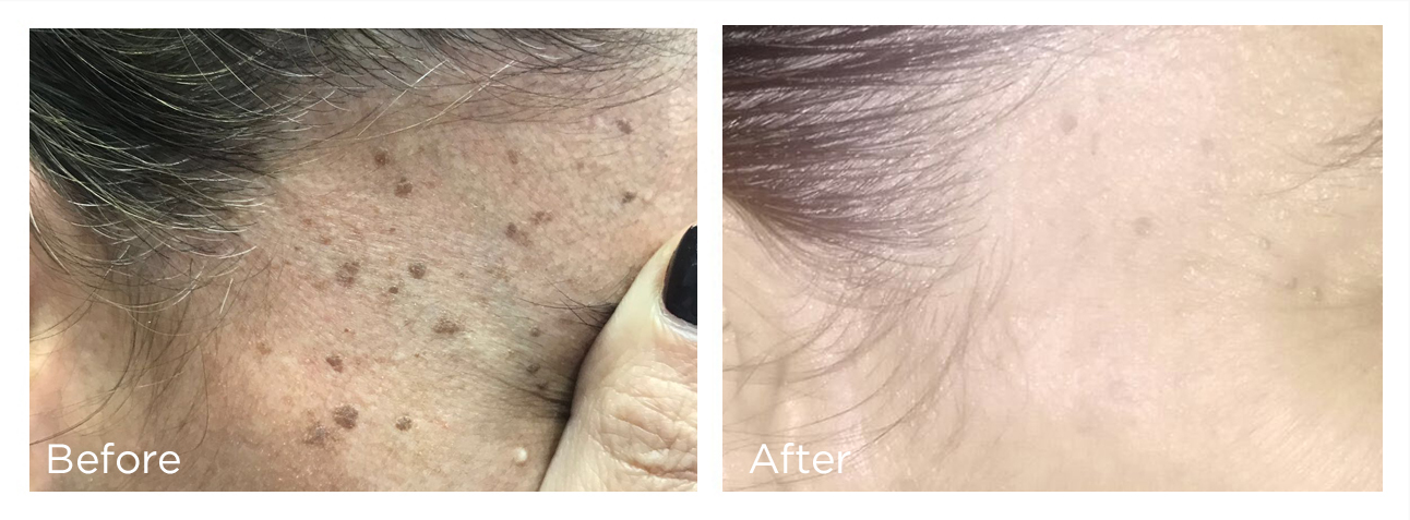 Spring Mist Spa - Remove unwanted skin lesions with Cryotherapy - Erase Dark spots, Age spots, Skin tags, Warts, Moles, Milia and more